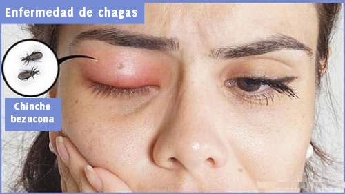 enfermedad-de-chagaz-1
